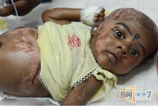 詭異!三個月男嬰身體無故自燃 ,三個月內,就出現了4次自燃現象 …連醫生都無解