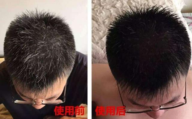 食鹽加它混在一起洗頭,白髮3天快速變黑! 再也不用花錢買染髮劑