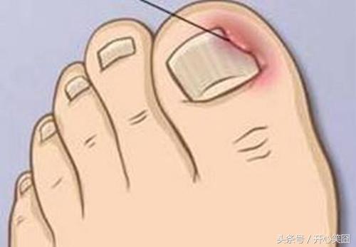 腳趾甲長進肉裡怎麼辦,不用拔這招能治好