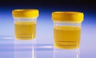 排尿很黃,異味很大,是身體的什麼信號嗎?