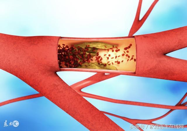 動脈發生硬化,身體會有這4個「不同」!別不當回事