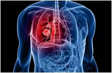不抽菸不喝酒,為什麼得癌症的偏偏是我?醫生說出了大實話!