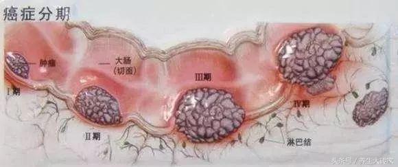 醫生提醒:有這四個症狀,可能是腸癌早期,3件事,再難也要堅持