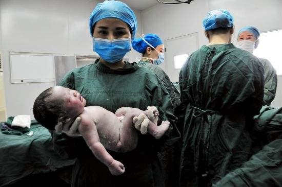預產期過了兩週才到醫院,等孩子剖出後,醫生嚇的兩腿發軟