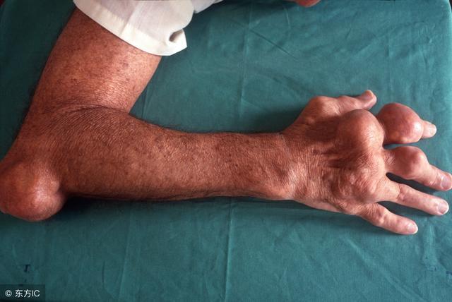 3大習慣導致尿酸高,怪不得痛風會「糾纏」你,趕緊改掉!