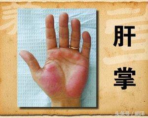 不用醫療設備檢查,只看手,我們能看出哪些疾病的端倪