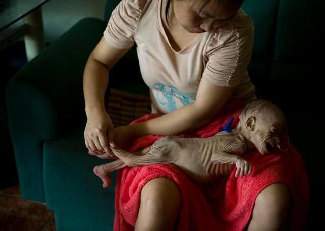 女嬰兒一歲長著長老人臉,竟因患上罕見病不長肉