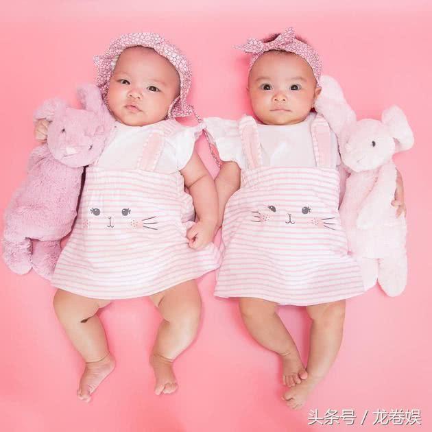 熊黛林曬長相清奇的雙胞胎! 無意中卻證實了自己的整容臉!