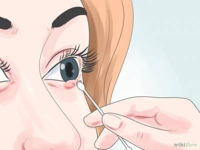 三種方法快速消除「針眼」!這篇收藏好,不幸得了就不用慌了!