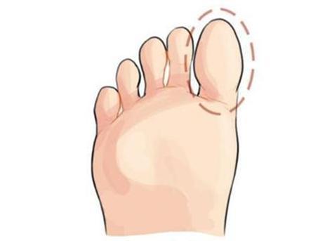 心理測試:你的哪個腳趾最長?測出你十年後的社會地位