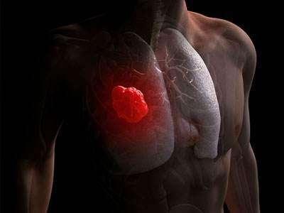 身體這一處「痛」,是癌症前兆!多數人都會輕視!