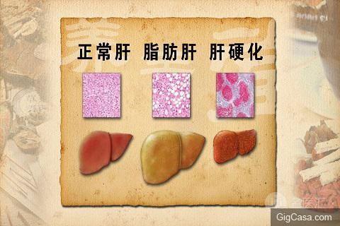 脂肪肝的治療與預防