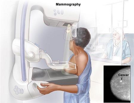每年200多萬因癌症死亡,如何早期發現癌症呢?
