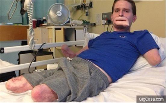 他得了一場「普通感冒」,竟因為這樣...嘴唇和四肢被吃掉,千萬不能大意!!