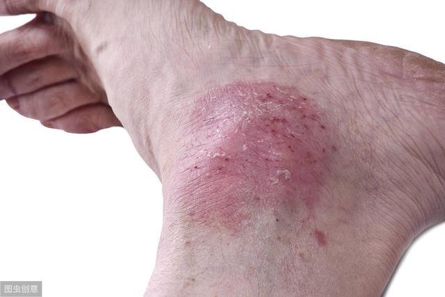 長濕疹、皮膚又紅又癢,中醫:常吃此果,快速止癢濕疹拜拜
