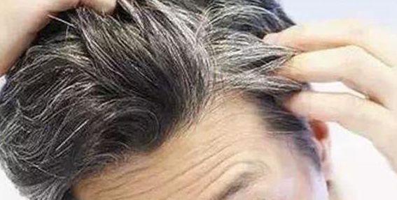 白髮為何越長越多?原因可能就出在這裡,為了健康多了解下