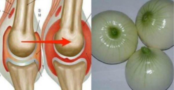 蔬菜皇後:它是「萬靈丹」,補骨髓比鈣快十倍!更可預防膽固醇、糖尿病、抗癌!【視頻】