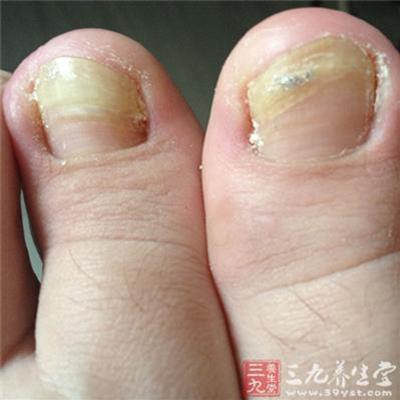 震驚!「腳指頭」如果長了這個東西…你就要特別小心了!可能是癌症前兆…