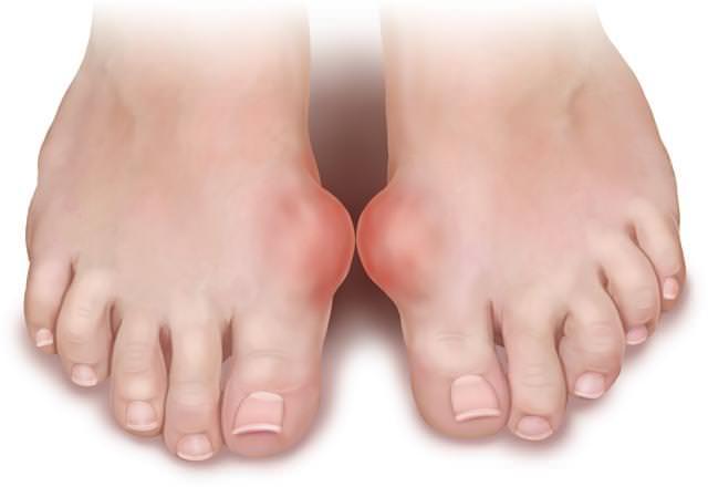 治療痛風排除尿酸最好的蔬菜,竟是這「倆兄弟」!只服用兩周,腳就完全不疼了!超有效!