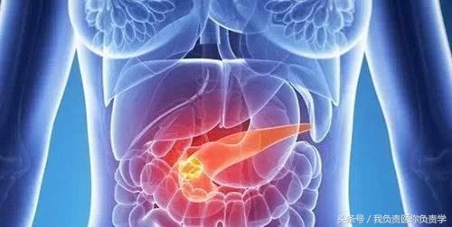 出現這4個症狀趕緊去醫院別猶豫,胰腺癌可能已經在路上