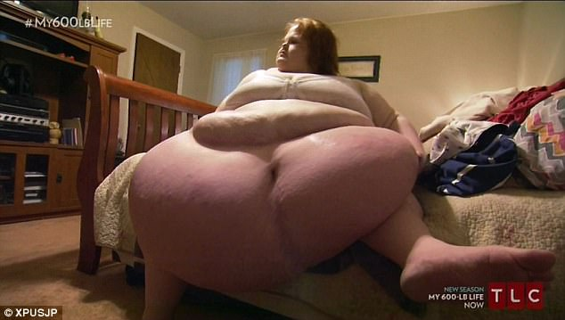 294公斤胖女每次洗澡都塞爆廁所,不惜賠命「狂減200公斤」現在約會對象都排到巷口了!