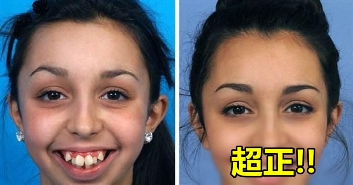 這位女生因為「下巴從8歲時停止了增長」導致影響了美貌,但她動了矯形手術後,瞬間就變成一個大正妹!