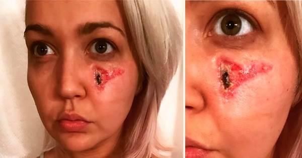 她醒來時發現自己的臉上少了一塊肉…再看看右手時直接嚇瘋了!
