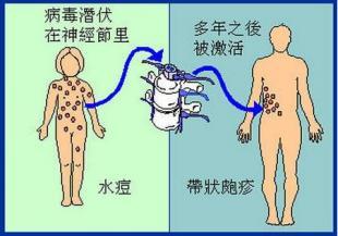 帶狀皰疹患者發病徵兆有哪些?單純皰疹病毒1型和2型