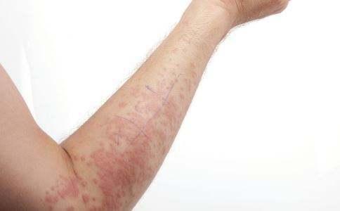 濕疹反復瘙癢難治癒 1招老中醫偏方30天消滅濕疹,斷根不反復濕疹反復怎麼辦?小偏方還你嫩滑美肌