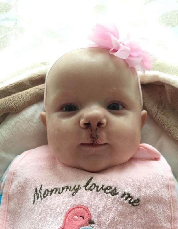 美國「兔唇」寶寶兩周大就接受手術治療,拆線之後媽媽泣不成聲