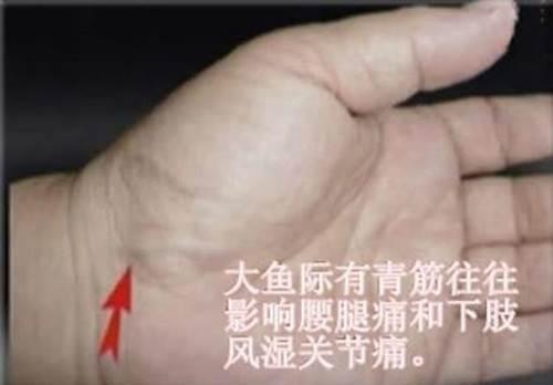 原來身體上的「青筋」不只是青筋!它正在告訴你發病跡象...