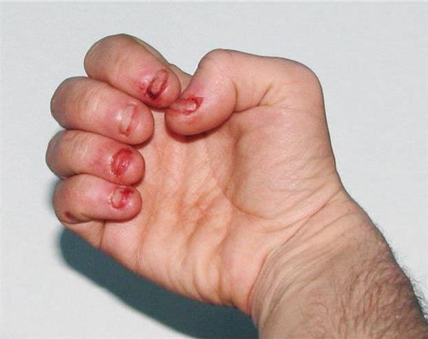 习惯咬指甲的人一定要知道的最恐怖的11个下场.