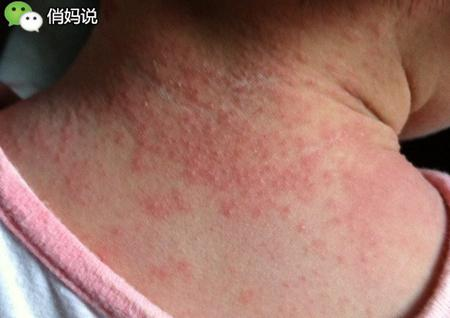 媽媽必看!寶寶皮膚出現這些問題都不是濕疹,千萬別自作聰明!