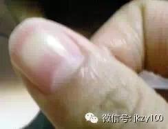 指甲上的豎線表示什麼病?尤其是有白點的一定要注意阿!!!