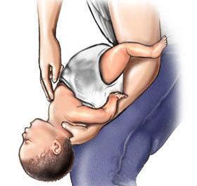 喉嚨被異物卡住千萬別拍背 成人孩童都適用的急救法