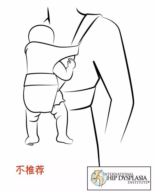 寶寶的O型腿不是病!亂治才要命!