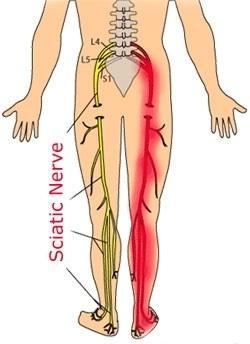 你有坐骨神經痛嗎?復健坐骨神經痛 『戴護腰治標不治本』這篇有更好的方法!(請分享)