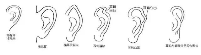 耳輪聚氣、耳廓藏財,從耳朵特徵看你的福祿壽!