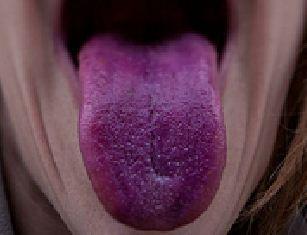 9種舌頭顏色讓你看出你搞不好早就已經罹患的「嚴重身體疾病」。