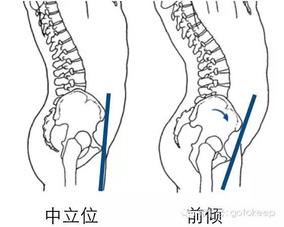 你的翹臀不一定是真的,還可能是骨盆前傾