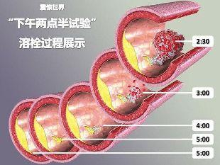 您必須知道腦血栓的十個前兆~健康專利 (歡迎分享)