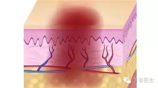 注意!為什麼身體輕輕一碰就瘀青?原來是因為你的身體已經…太重要了!