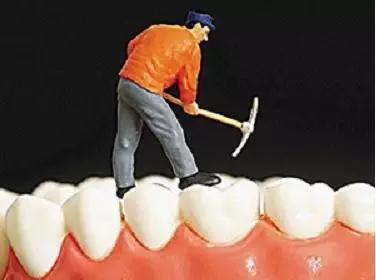 認識口腔中的大惡魔——牙結石