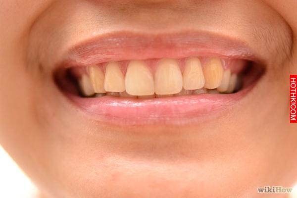 入睡時「夜間磨牙」算不算是一種症狀?沒想到是這種原因!快叫你身邊會磨牙的人來看..