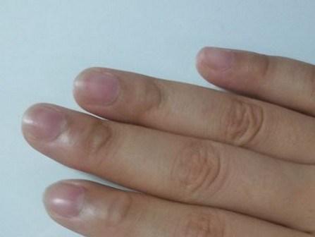 很多人都沒發現!「手指」突然長出這種小水泡…沒想到竟是大病前兆!千萬要小心了…