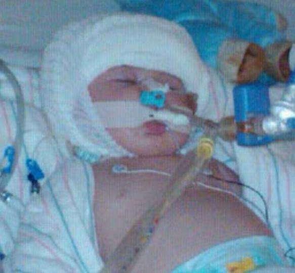 人間慘劇!她懷孕四次才生下兒子,婆婆誤用「這方法」餵奶竟害小孩腦積水夭折