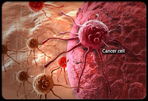 29歲就肺癌晚期,她的肺癌究竟從哪來的?