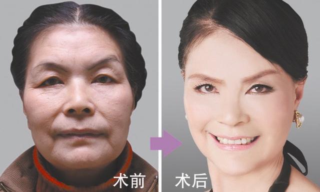 50後婆婆夢想成為16歲趙雅芝,花費一生積蓄,最後卻整成這樣 !!