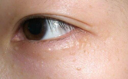鼻子最容易擠出這些白色的「條狀物」,它到底是什麼?