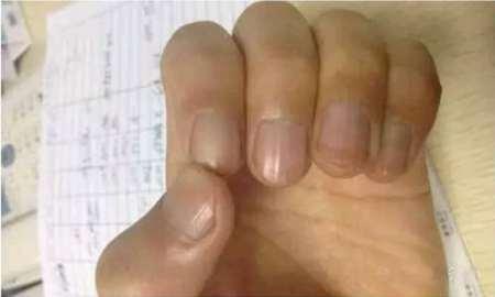 小心!指甲有這「7大癥狀」是疾病預兆,尤其是這「黑色斑點」,可能是癌症.....胃癌!要注意!
